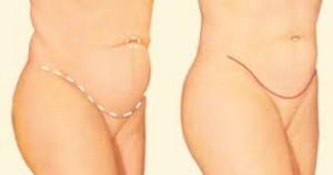Abdominoplasty1