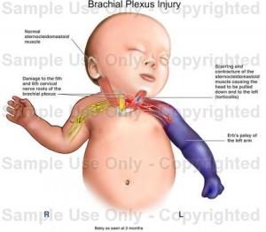 Brachial Plexus Paediatric