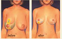 Breast Reduction3