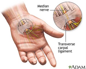 Carpal-tunnel-1