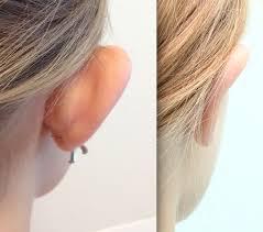 Ear 3