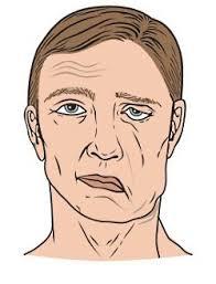 Facial palsy1