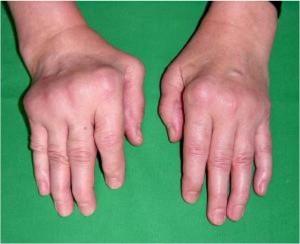 Rheumatoid-Hand-1