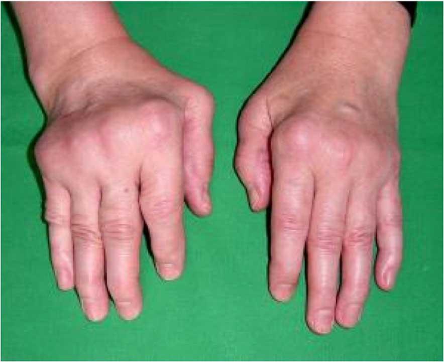 Здоровье ревматоидный артрит