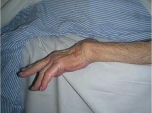 Rheumatoid-extensor-tendon-ruptures