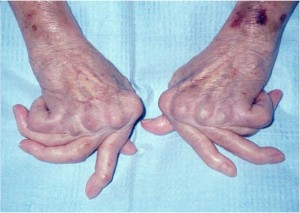 Rheumatoid-hand-advanced