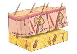 Skin Graft 1
