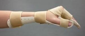 Splint 1