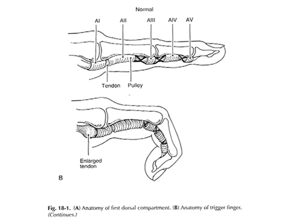 Pulleys Of Hand : Trigger finger adelaide plastic hand surgery