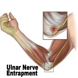 Ulnar-Nerve-Compression