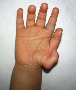'Type 6' thumb duplication