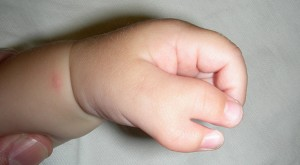 Wider 'type 4' duplication of the thumb